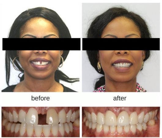 Hometown Orthodontics   dentist   250 Notre Dame Ave, Sudbury, ON P3B 2H5, Canada   7054704700 OR +1 705-470-4700