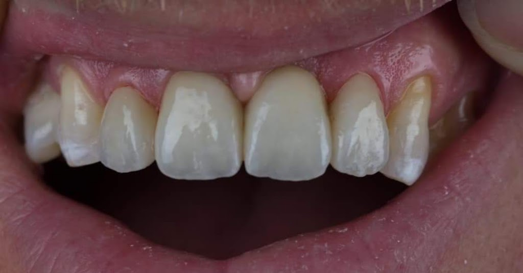 Esthetic Solutions Dental Laboratory | dentist | 6471-6507 Transit Rd, East Amherst, NY 14051, USA | 7166624332 OR +1 716-662-4332