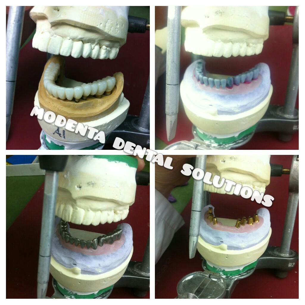 Modenta Dental Solutions Inc. | dentist | 160 East Beaver Creek Rd Unit 19, Richmond Hill, ON L4B 3L4, Canada | 2898091180 OR +1 289-809-1180
