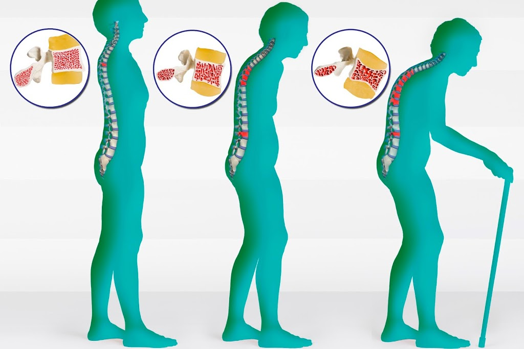 Mind Body Spine | health | 308-771 Vernon Ave, Victoria, BC V8X 5A7, Canada | 2508852320 OR +1 250-885-2320