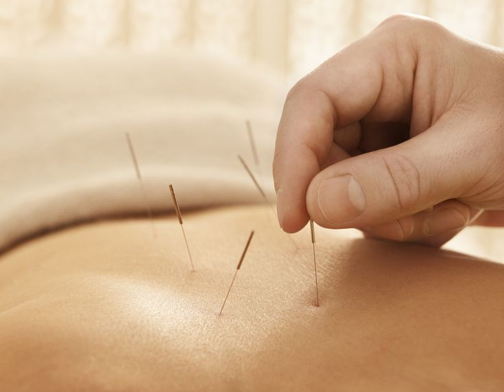 Grant Acupuncture Therapy Centre | health | 700 Montrose St, Winnipeg, MB R3M 3N2, Canada | 2048809599 OR +1 204-880-9599