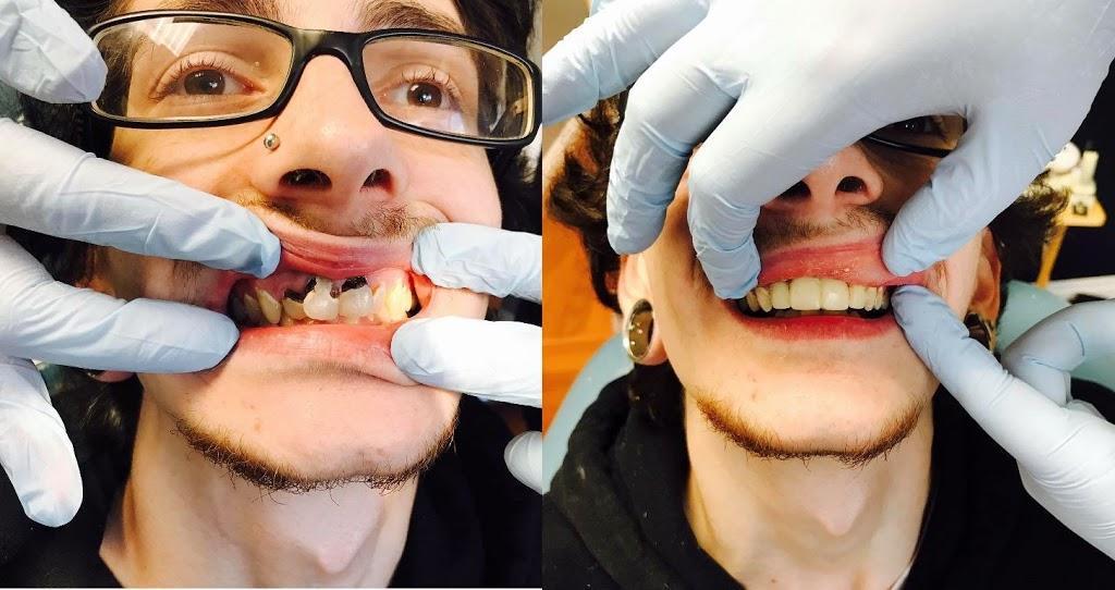 Best Veneers by Design at Bellwether Dental (Seattle and Belling | dentist | 12 Bellwether Way Ste 114, Bellingham, WA 98225, USA | 3603668026 OR +1 360-366-8026