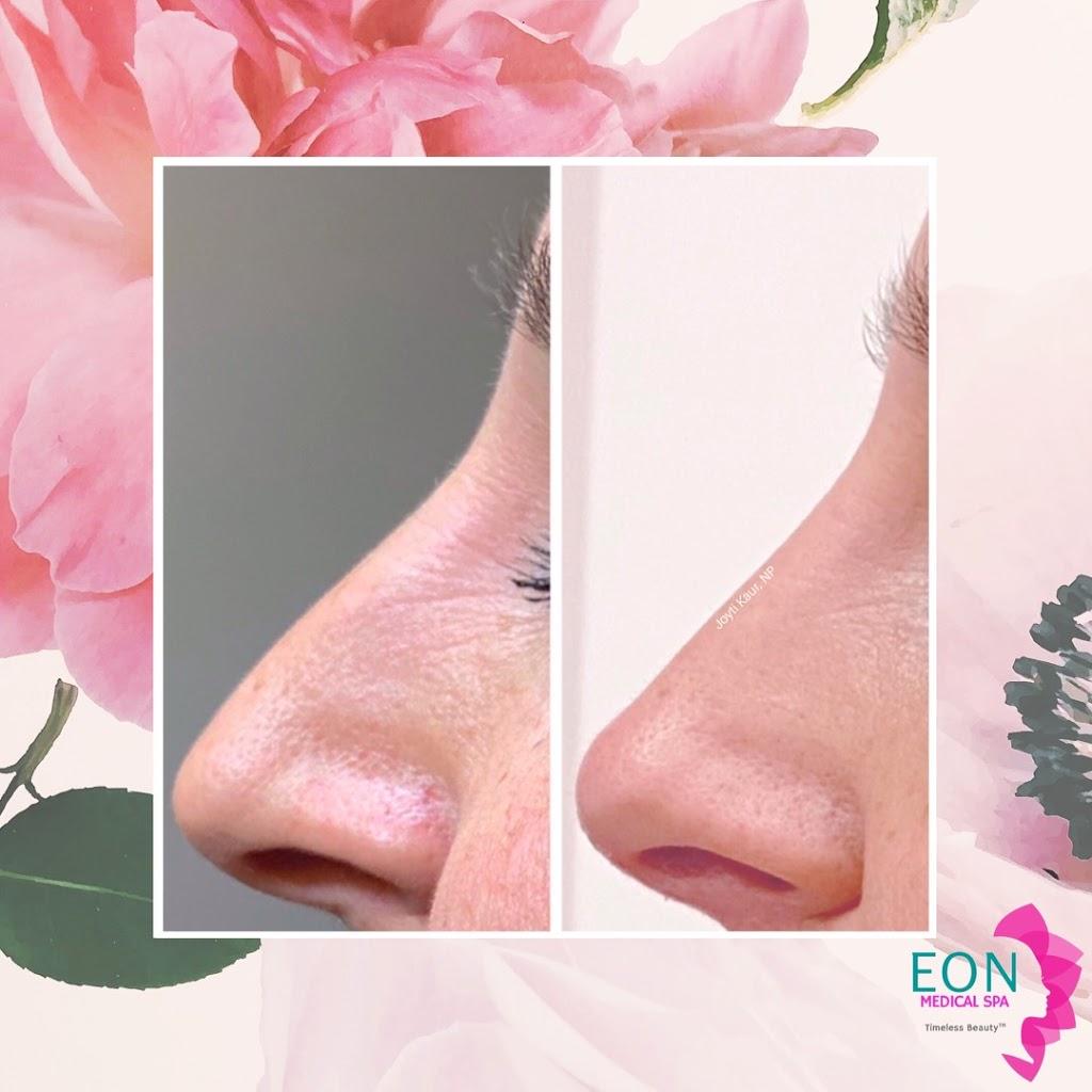 Eon Medical Spa   health   8655 Weston Rd, Woodbridge, ON L4L 9R6, Canada   4167235553 OR +1 416-723-5553