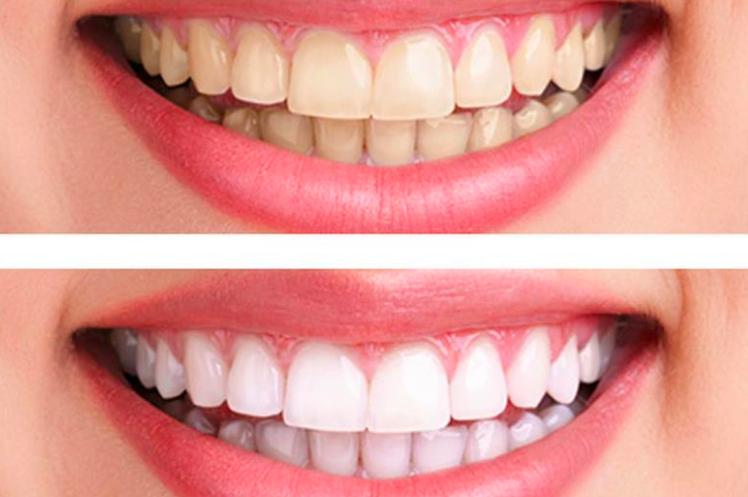Emma Skin Care | dentist | 69 Glen Cameron Rd, Thornhill, ON L3T 1N8, Canada | 6478962222 OR +1 647-896-2222