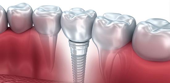 Sabrina Sirois Denturologiste - Limoilou & St-Sacrement - | dentist | 51 Rue Marie-de-lIncarnation local 101, Québec, QC G1N 3E5, Canada | 4185276449 OR +1 418-527-6449