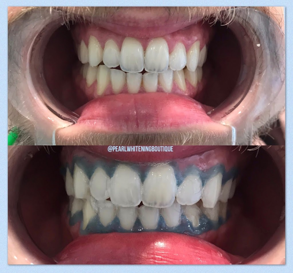 Pearl Whitening Boutique - Teeth Whitening Toronto, Laser Teeth  | dentist | 1179 The Queensway, Etobicoke, ON M8Z 1T3, Canada | 6478835220 OR +1 647-883-5220