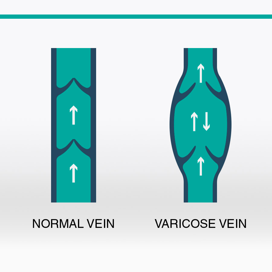 Varicose Vein Clinic of BC | doctor | 168 13th St E #202, North Vancouver, BC V7L 4W8, Canada | 6049864772 OR +1 604-986-4772