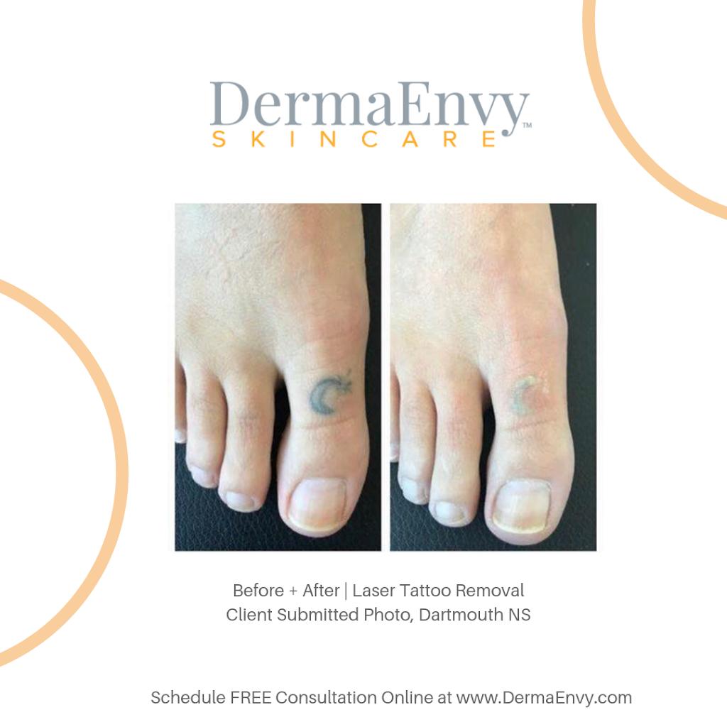 DermaEnvy Skincare - Waterloo | dentist | 99 Northfield Dr E Suite 305, Waterloo, ON N2K 3P9, Canada | 5198888149 OR +1 519-888-8149