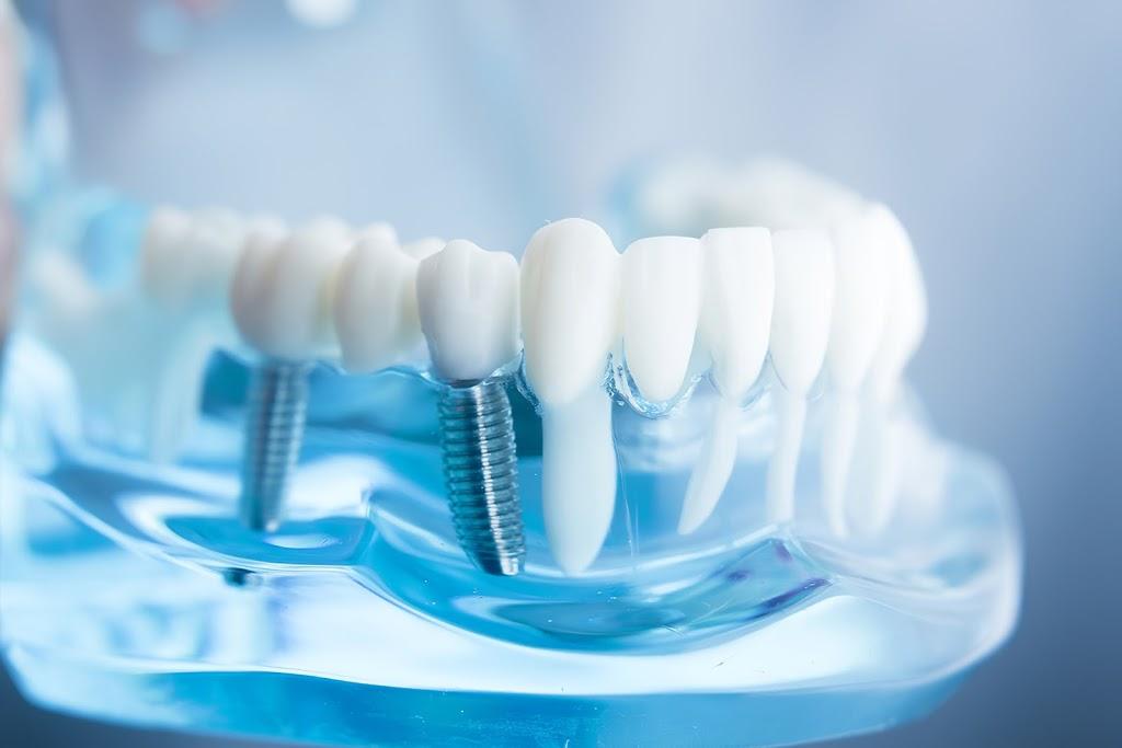 VoyDent Dental Laboratory | dentist | 1261 A St Clair Ave W, Toronto, ON M6E 1B8, Canada | 6477173133 OR +1 647-717-3133
