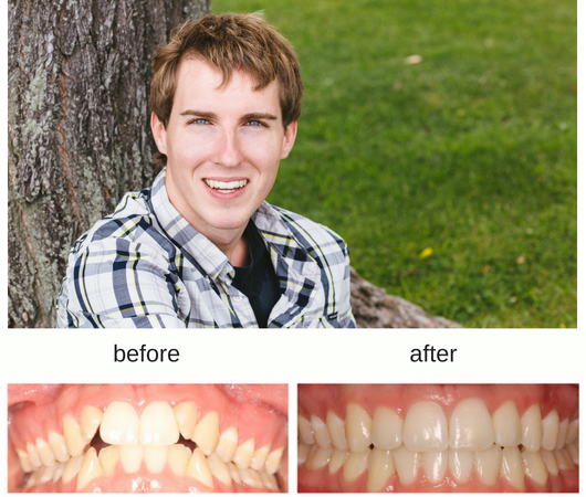 Hometown Orthodontics | dentist | 250 Notre Dame Ave, Sudbury, ON P3B 2H5, Canada | 7054704700 OR +1 705-470-4700