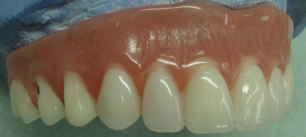 Baluke Dental Studios | dentist | 85 West Wilmot St Unit 8, Richmond Hill, ON L4B 1K7, Canada | 9057646322 OR +1 905-764-6322