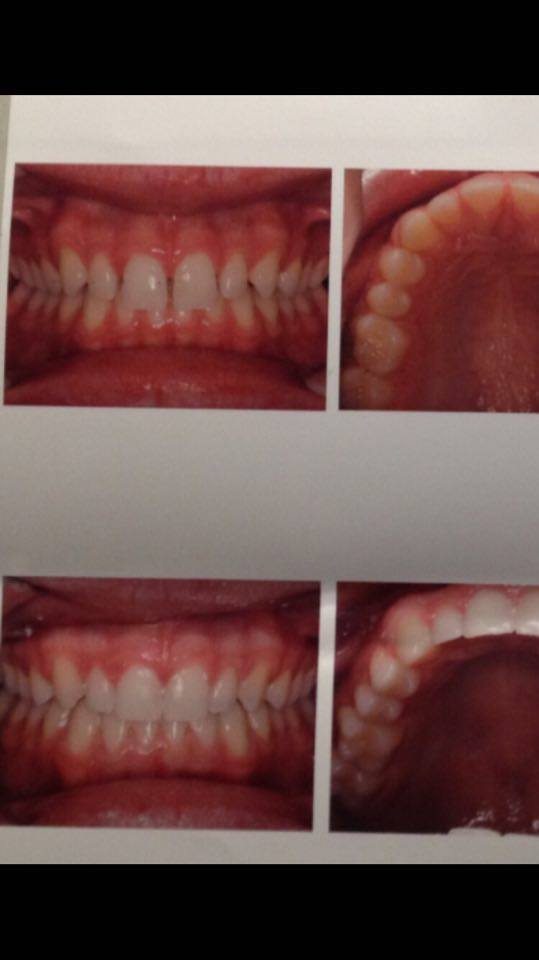 Sudbury Orthodontics | dentist | 250 Notre Dame Ave, Sudbury, ON P3C 5K5, Canada | 7056716261 OR +1 705-671-6261