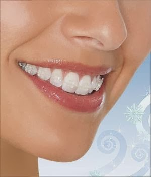 Lee Dental Group (Dr. Raymond Lee & Associates) | dentist | 1177 Central Pkwy W Unit 8, Mississauga, ON L5C 4P3, Canada | 9052901101 OR +1 905-290-1101