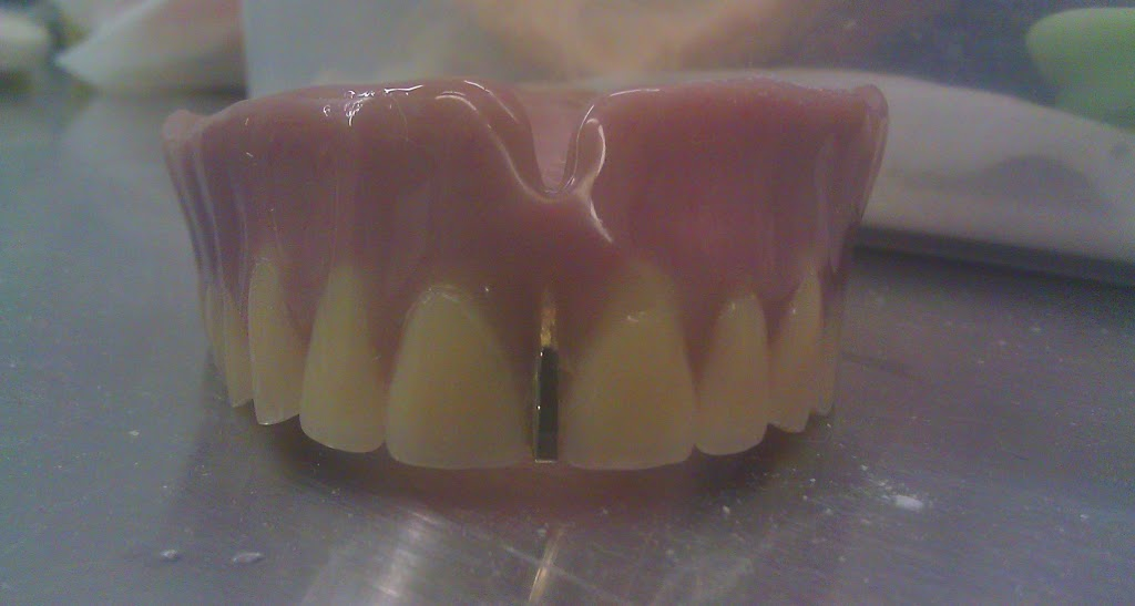 Lima Denture and Implant Solutions - Dentist | 797 Richmond