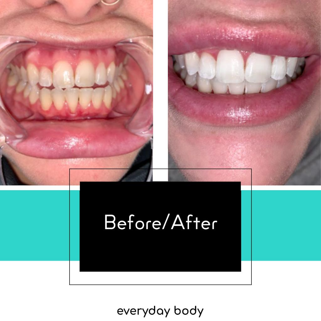 Everyday Body | dentist | 120 San Antonio Dr, Hamilton, ON L9C 5N2, Canada | 6472445351 OR +1 647-244-5351
